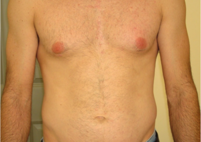 Chicago Laser Hair Removal After