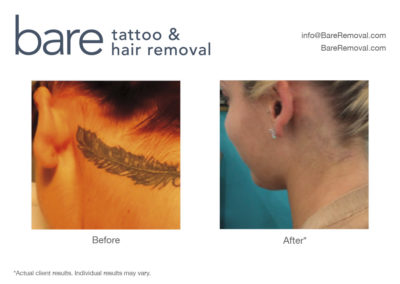 Best Tattoo Removal Chicago