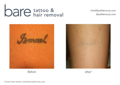 Bare Tattoo & Hair Removal Chicago