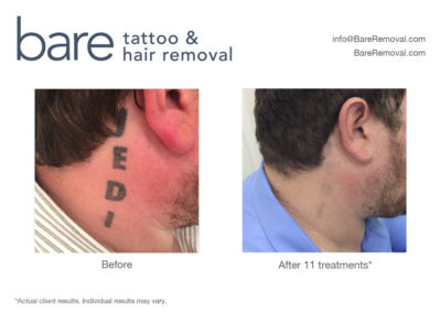 Q-Switched Laser Tattoo Removal