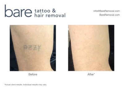 100% Gone Tattoo Removal Results
