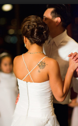 Want to Tattoo Removal For Your Wedding? 4 Things You Should Know