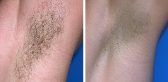Before After Laser Hair Removal In Chicago Bareremoval