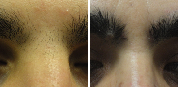 Bare Tattoo & Hair Removal Soproano Eyebrow