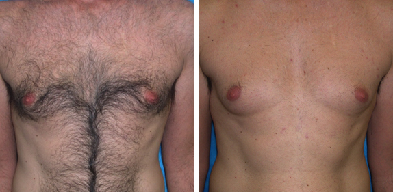 Laser Hair Removal Chicago Chest Soprano