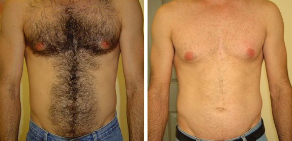 Laser Hair Removal Chicago Soprano Chest