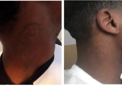Neck Tattoo Before and After 1