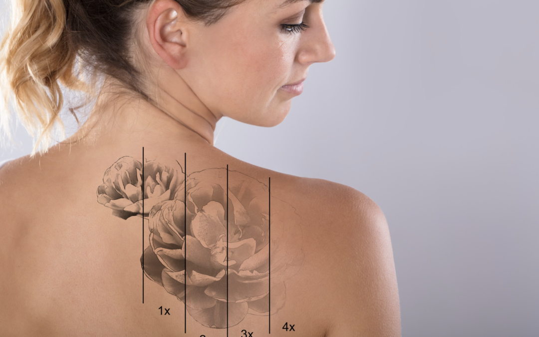 5 Ways To Speed Up The Fading Process of a Laser Tattoo Removal